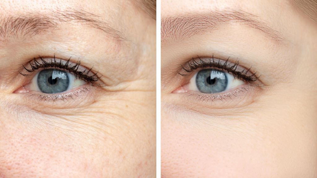 Botox before and after - San Jose, CA