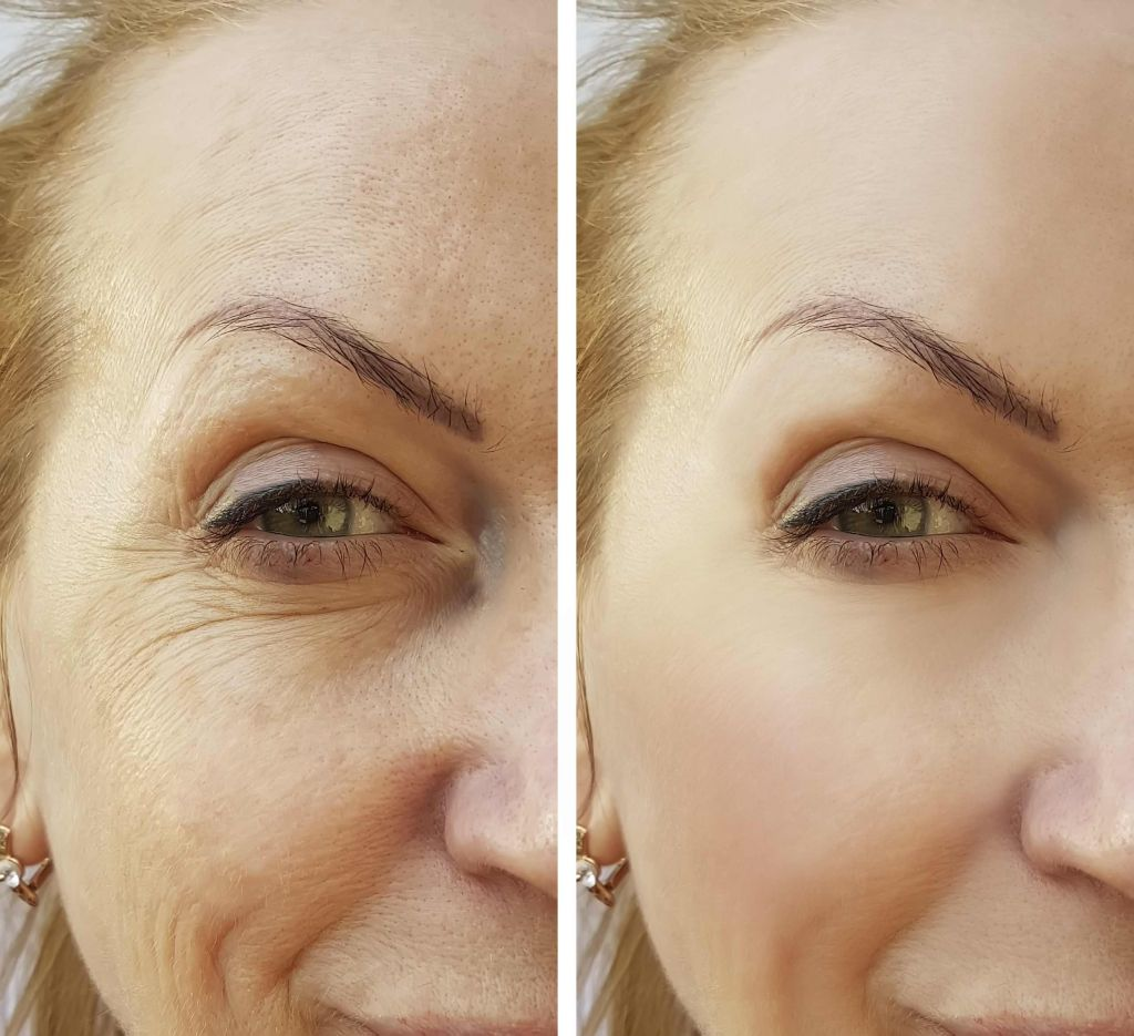 Before and After Juvederm - San Jose, CA