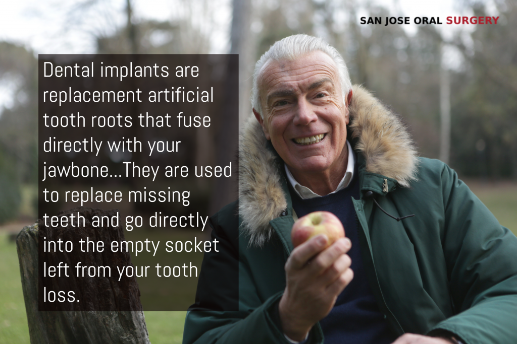 Man Dental Implants smiling while holding an apple, with text- San Jose, CA