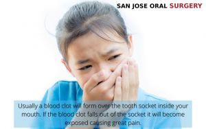 Girl holding her mouth in pain because of dry socket, with text - San Jose, CA